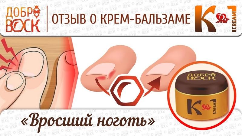 Вросший ноготь как вылечить без операции С помощью крем бальзама К 1 уже результат на след день