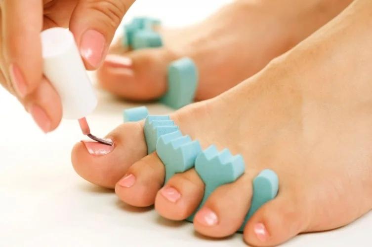 Как лечить онихомикоз ногтей на ногах?, изображение №9