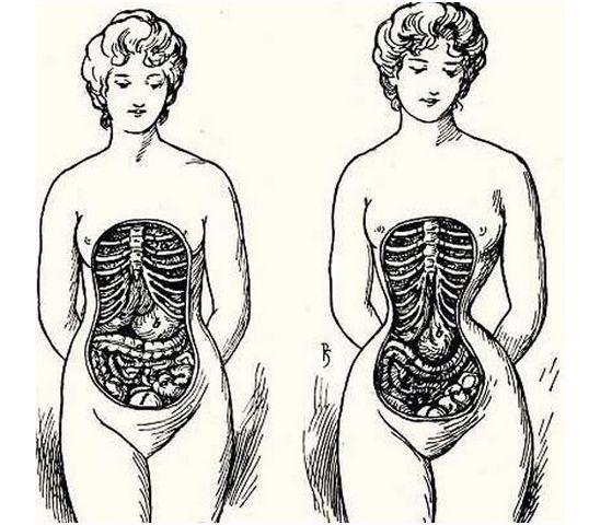 Иллюстрация викторианской эпохи о вреде корсетов. В результате сдавливания у девушек уменьшался объем легких, ребра находили одно на другое, а также деформировались внутренние