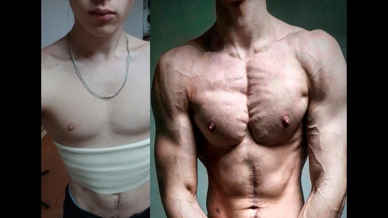 Dannie Hariel 2 Year Natural Transformation
