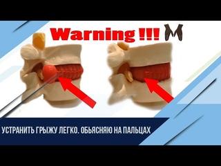 Как вылечить межпозвоночную грыжу без операции