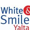 Отбеливание зубов Ялта Wite&Smile