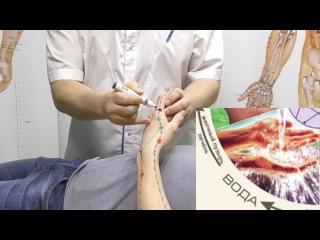 Секреты китайской медицины (20). Точка Эр-цзянь. Меридиан толстого кишечника Gi2.