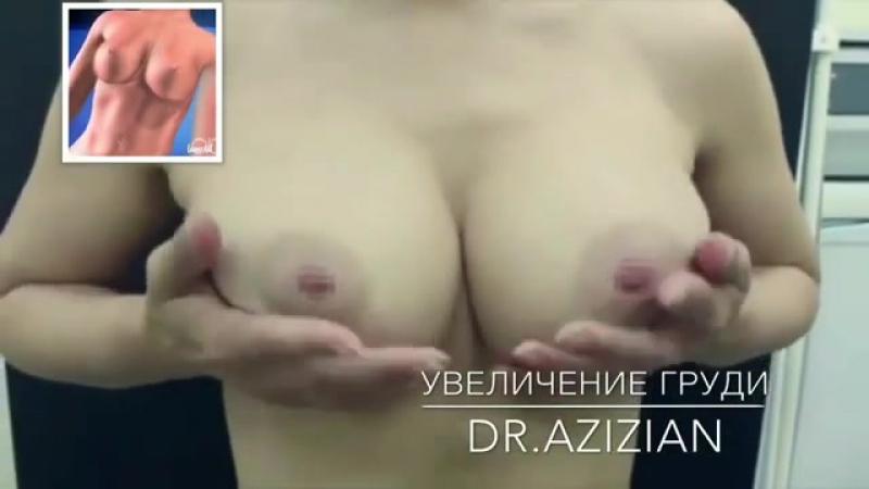 Пластический хирург Азизян В.С. - Маммопластика