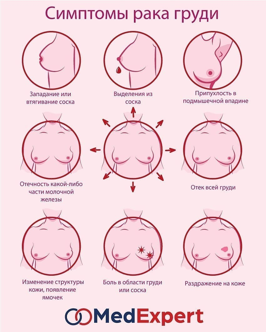 Better sex after breast cancer
