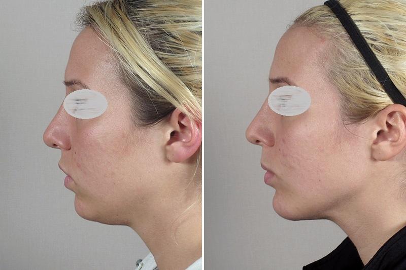 Формирование подбородка + коррекция углов нижней челюсти