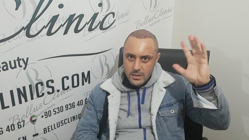 пересадка волос в Bellus Clinic отзыв Бахриддина