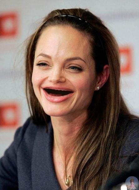 Как бы смотрелась голливудская улыбка без зубов