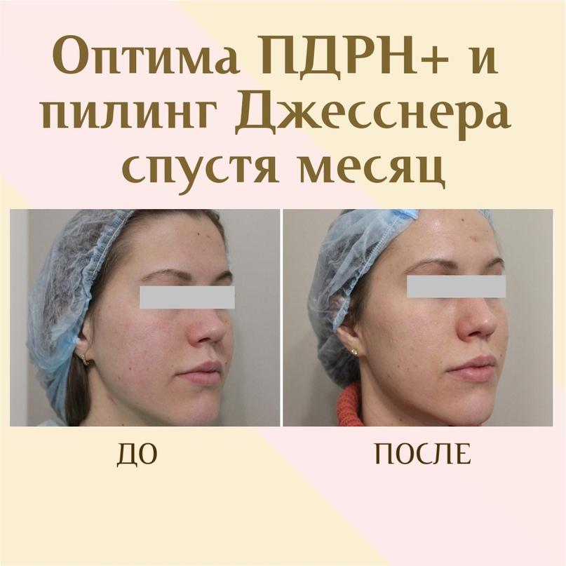 ПДРН в косметологии, изображение №3