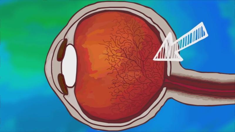 Плавающие объекты в наших глазах — что это такое? TED ED