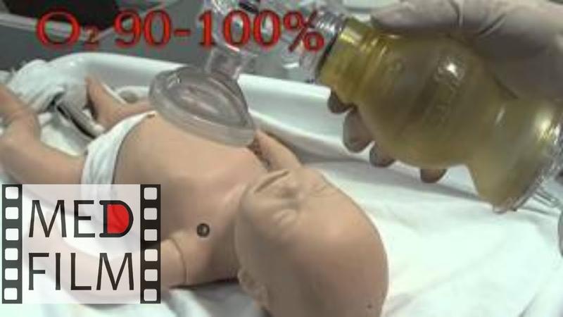 Реанимация новорожденных в родильном зале Часть 1