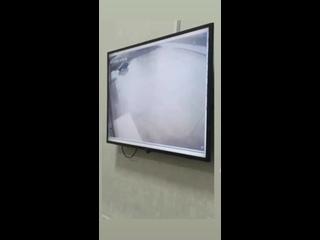 Видео  момента  аварии при въезде  в #Хасавюрт погибла  молодая  девушка и трое пострадали