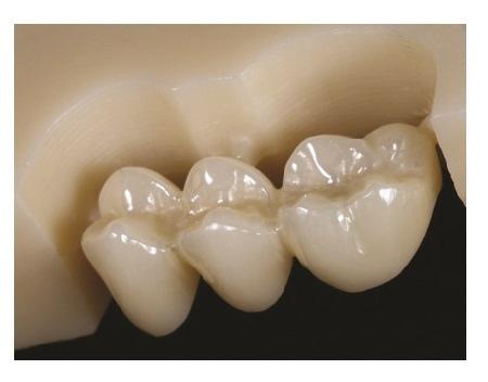 Сколько стоит керамическая коронка на зуб Самара