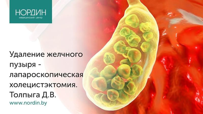 Удаление желчного пузыря лапароскопическая холецистэктомия