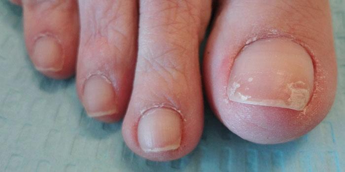 Как лечить онихомикоз ногтей на ногах?, изображение №3