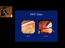 2017 General Session 1 - Intervention in PSC Perspectives from ERCP Provider